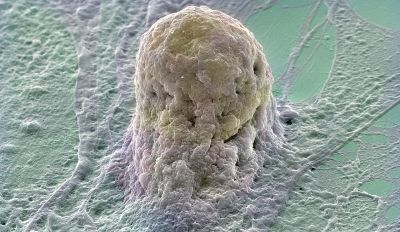Human Emryonic Stem cell -- Copyright Annie Cavanagh. Wellcome Images on Flickr