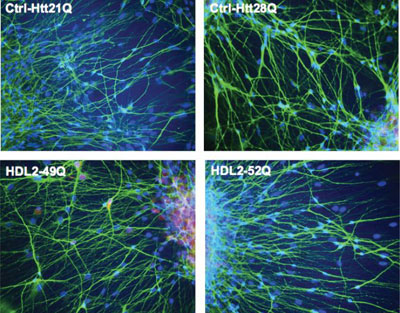 The role of junctophili-3 (JPH3) in neurons- comparison to chorein (VPS13A)